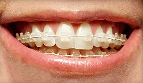 Clear braces in Owensboro lead to beautiful straight teeth for Henderson KY residents