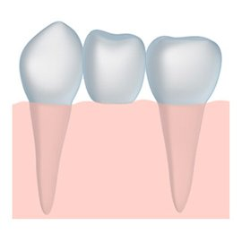 Strong Dental Bridges in Henderson KY and Owensboro